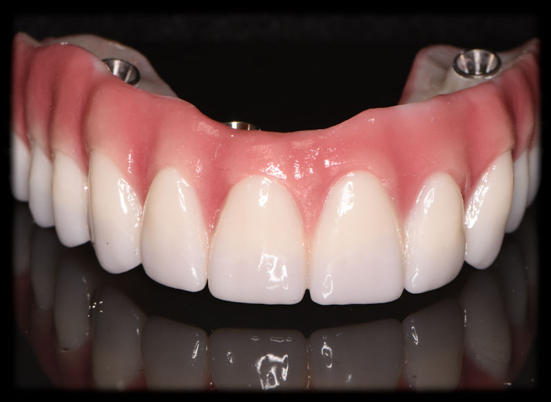 DSC 0923 All Zirconia Hybrid pink DS